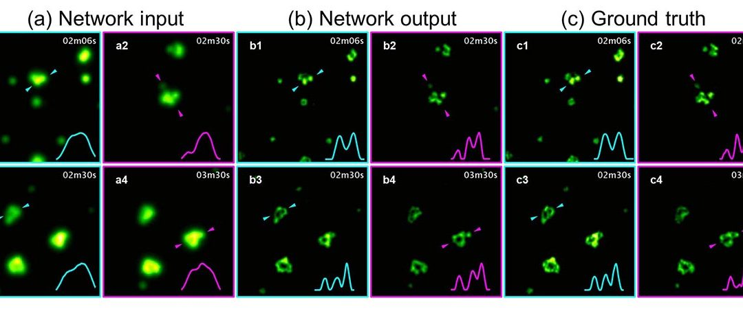 Dec 17, 2018 | Deep learning takes fluorescence microscopy into super resolution